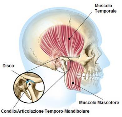 Sindrome temporo-mandibolare
